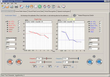audiometer module2_fmt